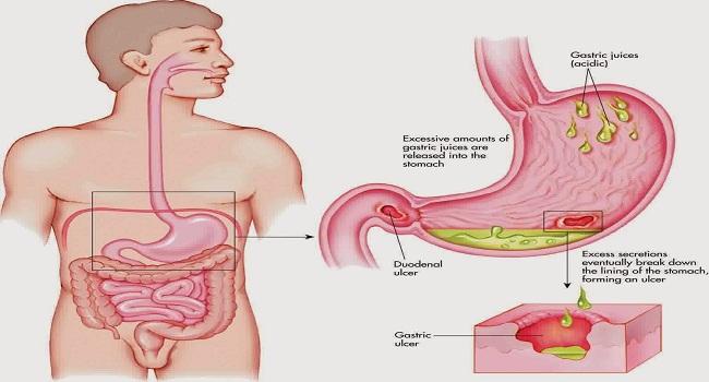 Gastritis Anatomy