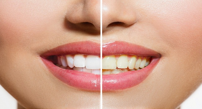 How to Safely Whiten Your Teeth at Home3